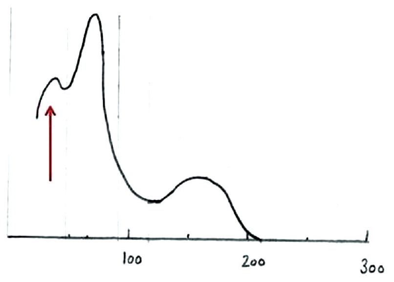Figure 2: White blood cell histogram – arrow shows unknown peak attributed to platelet clumps