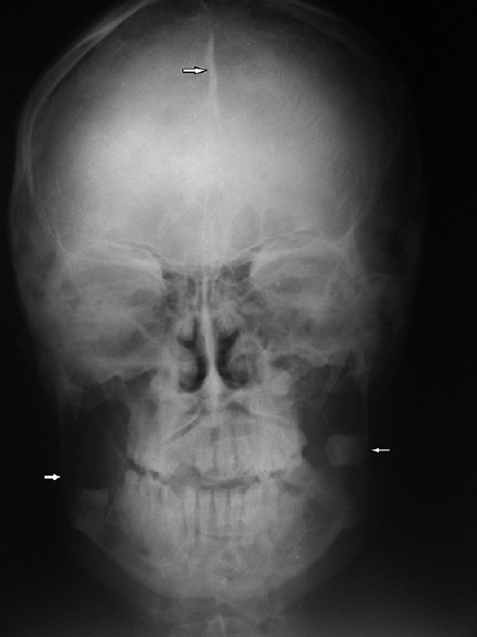 Figure 5: Posteroanterior view of skull showing falx cerebri calcification