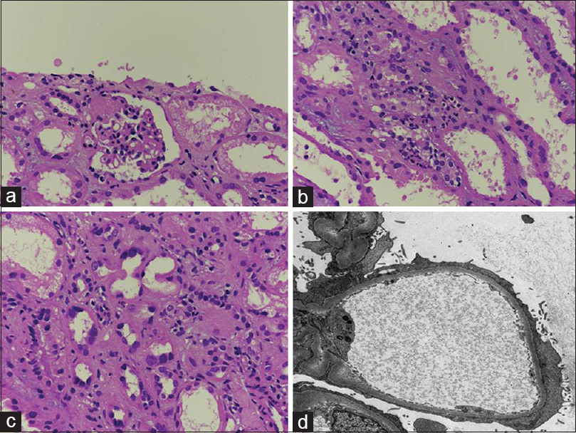 Figure 1: (a) Segmental sclerotic lesion in one glomerulus associated with hyalinosis, diffuse acute tubular necrosis, and interstitial infiltrate (H and E, ×400). (b) The interstitial infiltrate is composed of lymphocytes with few scattered neutrophils and an occasional eosinophil (H and E, ×400). (c) Majority of the tubular nuclei are enlarged, few with conspicuous nucleoli (H and E, ×400). (d) Diffuse podocytic foot process effacement indicating primary podocytopathy (electron microscopy, ×3000)